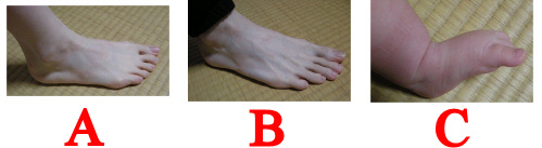Real life foot comparison